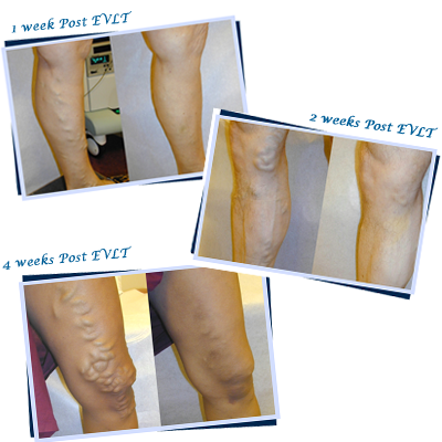 evlt vein treatment before and after